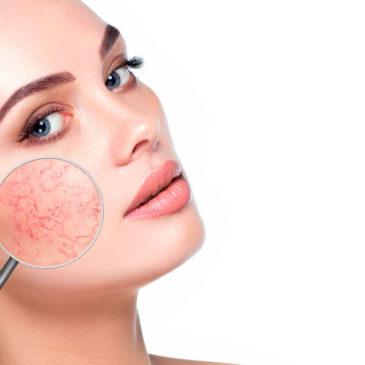 Rojeces en la cara: causas y cómo se manifiestan
