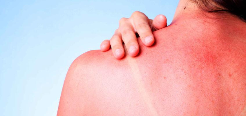 Cómo tratar las quemaduras de sol