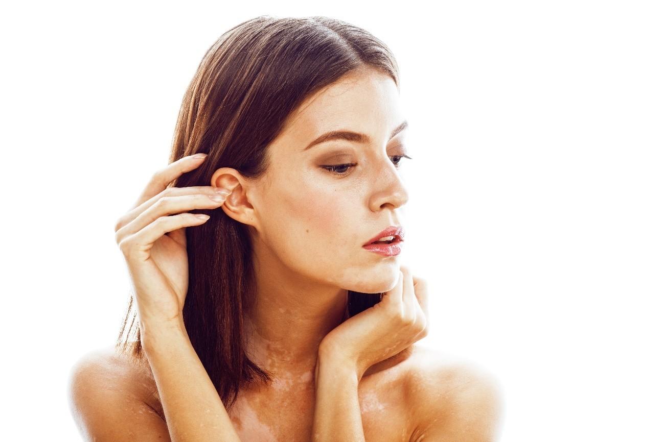 nombre de enfermedad de manchas en la piel
