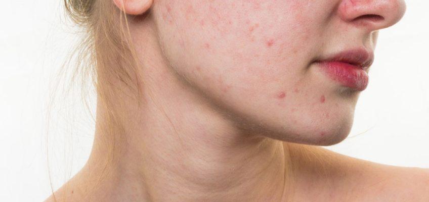 ayuda para eliminar manchas rojas del acné