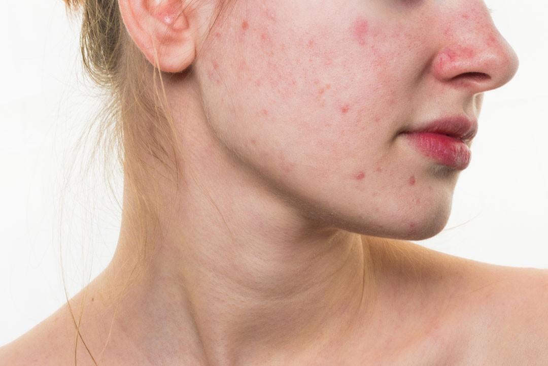 Como eliminar marcas de granos en la piel