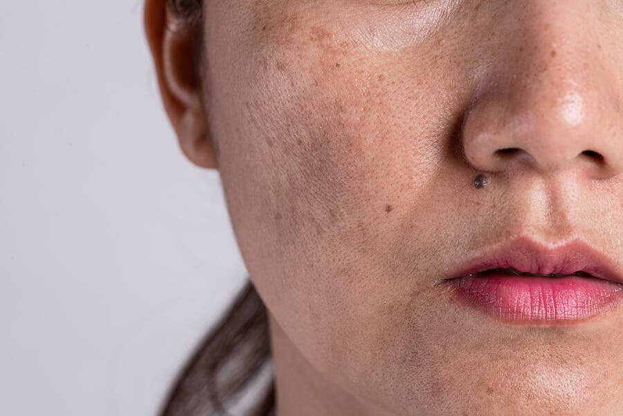 Rostro con hiperpigmentación, una de las causas que provocan manchas en la piel