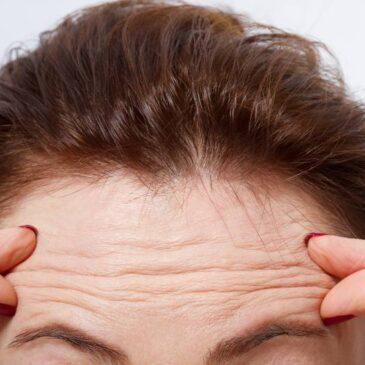 Cómo reducir las arrugas en la frente