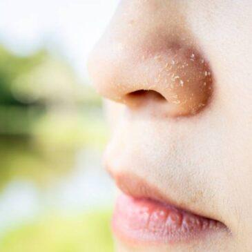 Dermatitis seborreica en la cara: causas y tratamientos