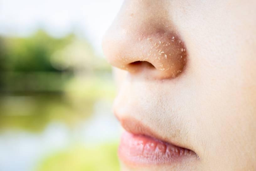 Dermatitis seborreica en la cara