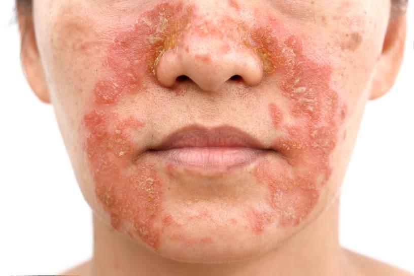 imagen de una cara con brote de rojeces por dermatitis seborreica facial