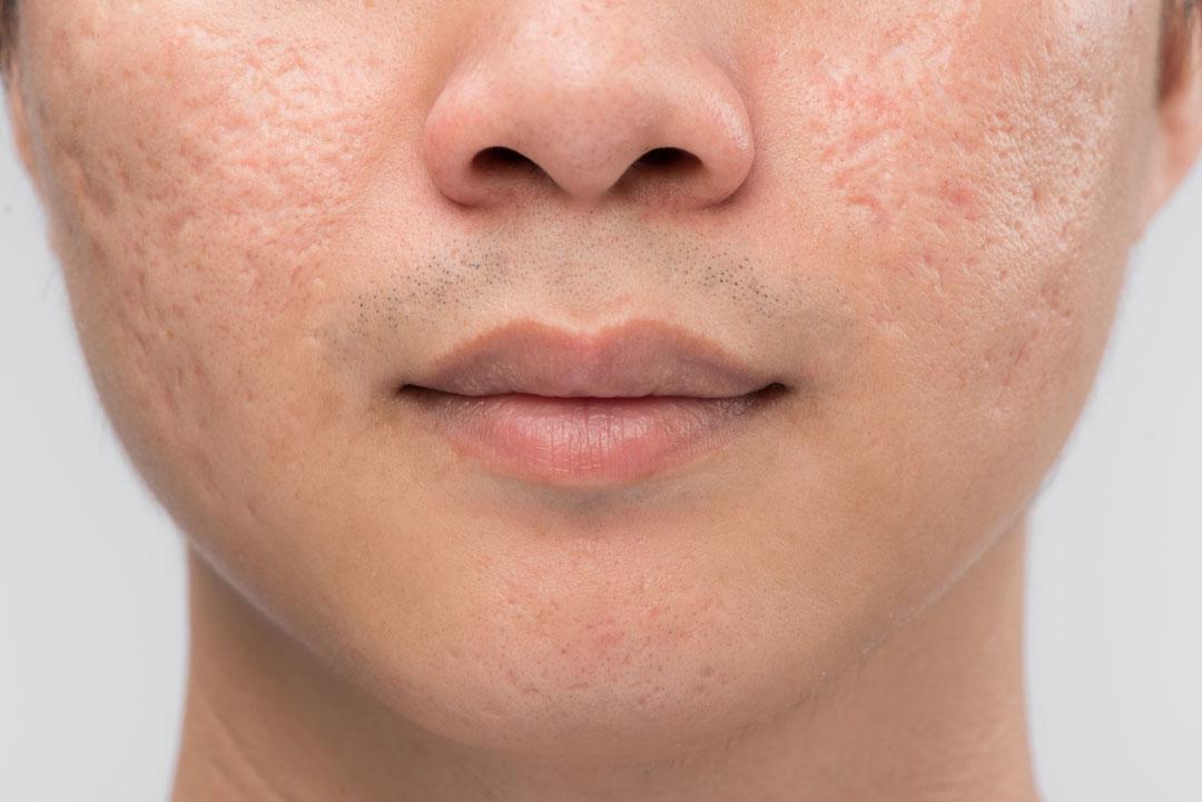 imagen donde se aprecian las marcas que deja el acné en la piel de la cara